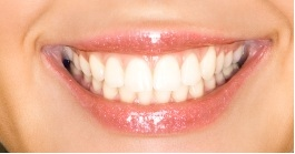 FAMILY SMILE DENTAL CENTER in Germantown MD